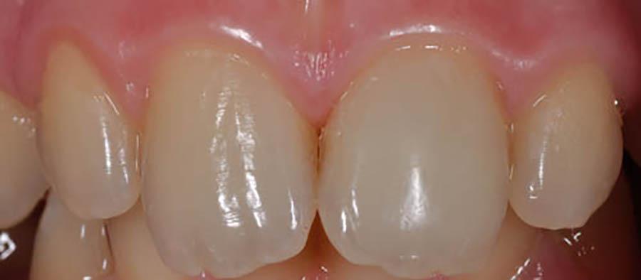 Reatasarea unui fragment dentar incorect atasat si reatasat corect